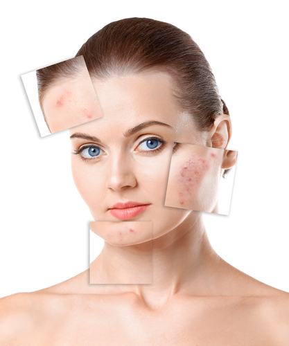 A positive collagen powder side effect is that it can reduce scars over time.